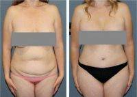 Liposuction, Breast Augmentation, Tummy Tuck